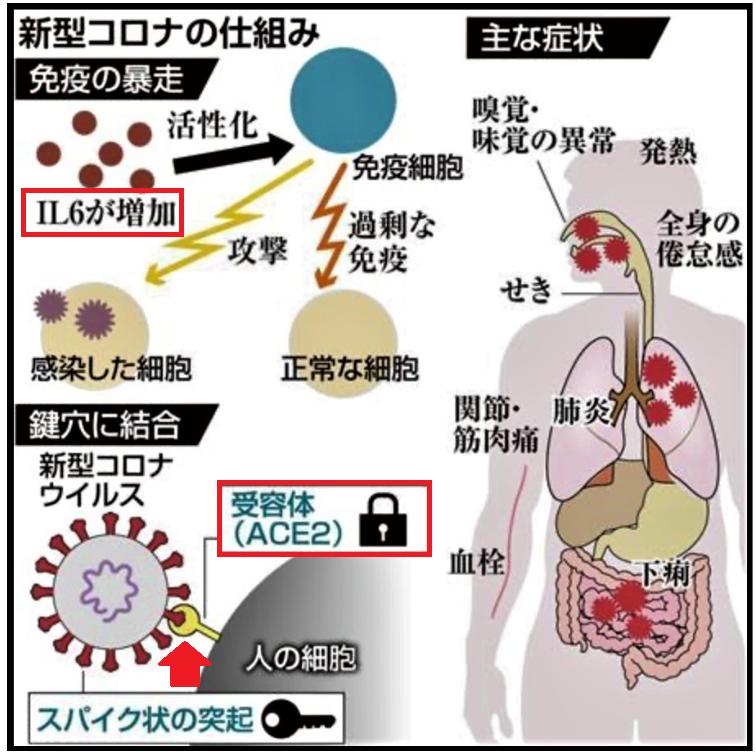 痛い 肺 コロナ ウイルス が 新型コロナウイルス感染症(COVID