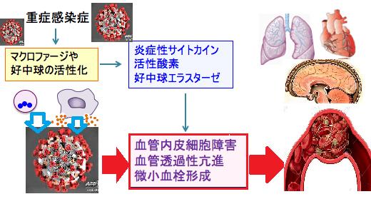 ウイルス 血栓 コロナ 新型コロナウイルス感染症と血栓症、降圧剤(ACE阻害薬、ARB)