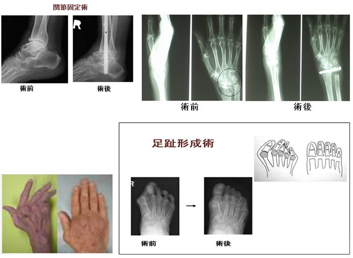 関節固定術や関節形成術